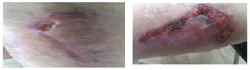 b cure, b-cure, b cure laser, b-cure laser, stop durere, durere, opreste durerea, oprește durerea, laser, tratament laser, terapie laser, gabriela vilcea, gabriela vîlcea, gy medical solutions, vindeca durerea, vindecă durerea, aparat pentru durere, aparat medical pentru durere, dispozitiv pentru durere, dispozitiv tratament durere, aparat tratament durere, dispozitiv medical pentru durere, tratament durere laser, terapie durere laser, durere cronica, durere cronică, soft laser, cold laser, laser lllt, sănătate, vindeca durerea, vindecă durerea, sanatate, sănătate, tratament rani, tratament răni, tratament rani diabet, tratament răni diabet, diabet, ulcer diabet, ulcer diabetic, escara, escară, escare