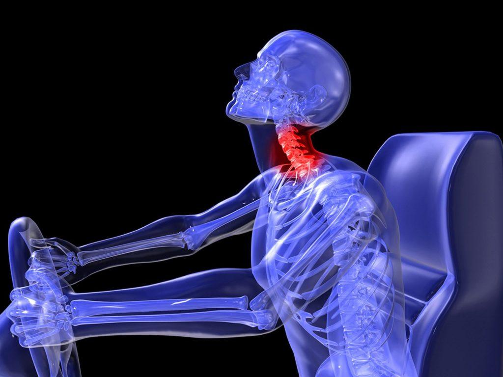 b cure, b-cure, b cure laser, b-cure laser, b cure laser romania, b -cure laser romania, stop durere, durere, opreste durerea, oprește durerea, laser, tratament laser, terapie laser, gabriela vilcea, gabriela vîlcea, gy medical solutions, vindeca durerea, vindecă durerea, aparat pentru durere, aparat medical pentru durere, dispozitiv pentru durere, dispozitiv tratament durere, aparat tratament durere, dispozitiv medical pentru durere, tratament durere laser, terapie durere laser, durere cronica, durere cronică, soft laser, cold laser, laser lllt, sănătate, vindeca durerea, vindecă durerea, sanatate, sănătate, durere cervicala, durere cervicală, dureri cervicale, tratament dureri cervicale, tratament durere cervicala, tratament durere cervicală, accident auto, accident rutier, durere accident auto, dureri accident auto, durere accident rutier, dureri accident rutier, durere cervicala accident auto, durere cervicală accident auto, dureri cervicale accident auto, durere cervicala accident rutier, durere cervicală accident rutier, dureri cervicale accident rutier