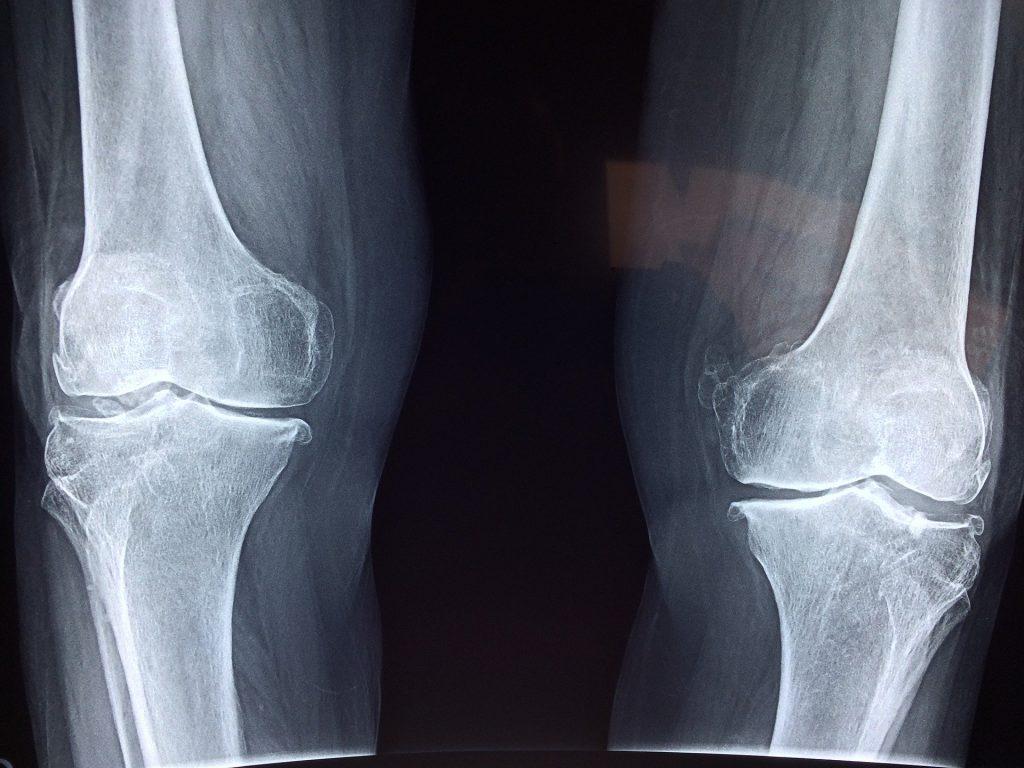b cure, b-cure, b cure laser, b-cure laser, b cure laser romania, b -cure laser romania, stop durere, durere, opreste durerea, oprește durerea, laser, tratament laser, terapie laser, gabriela vilcea, gabriela vîlcea, gy medical solutions, vindeca durerea, vindecă durerea, aparat pentru durere, aparat medical pentru durere, dispozitiv pentru durere, dispozitiv tratament durere, aparat tratament durere, dispozitiv medical pentru durere, tratament durere laser, terapie durere laser, durere cronica, durere cronică, soft laser, cold laser, laser lllt, sănătate, vindeca durerea, vindecă durerea, sanatate, sănătate, osteoartrita, osteoartrită, tratament osteoartrita, tratament osteoartrită